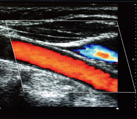 Imagem da artéria carótida feita por um exame que envolve o efeito Doppler