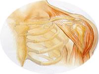 Inflamação na bolsa que envolve as articulações