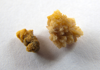 Os cálculos renais são agregados cristalinos formados pela precipitação de alguns sais, como o fosfato de cálcio