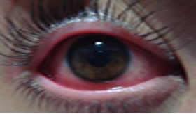A conjuntivite causa vermelhidão e bastante desconforto aos olhos
