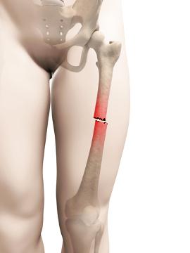 O tecido ósseo possui uma impressionante capacidade de cicatrização