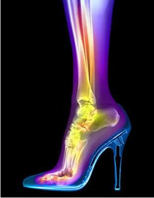 Radiografia colorizada em computador
