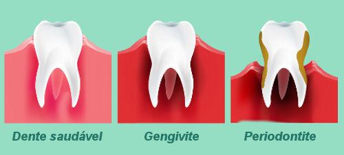 A gengivite pode evoluir para problemas mais graves, como a periodontite