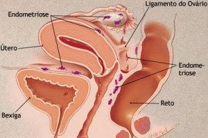 Algumas das principais localizações da endometriose.