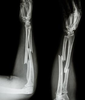 As fraturas podem ser definidas como uma ruptura do osso