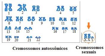 Observe que, na síndrome de Klinefelter, o cariótipo é normalmente 47, XXY