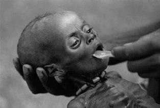 Realidade de muitas crianças africanas.
