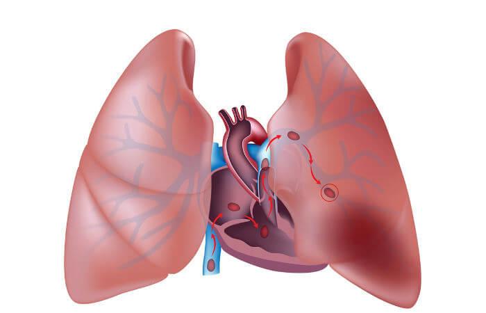 Na embolia pulmonar, trombos instalam-se na artéria pulmonar ou em um de seus ramos.