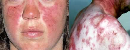 """À esquerda, tipo de lesão comum no rosto, chamado de """"asa de borboleta""""; e à direita, paciente com lúpus eritematoso sistêmico"""