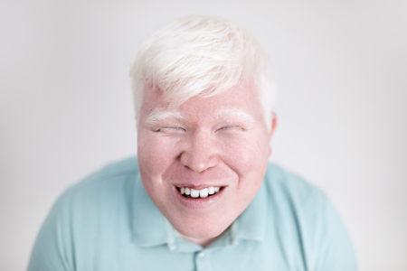 O albinismo é um caso de dominância completa