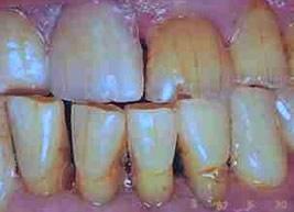 Sintoma característico do bruxismo: o desgaste do esmalte dos dentes.