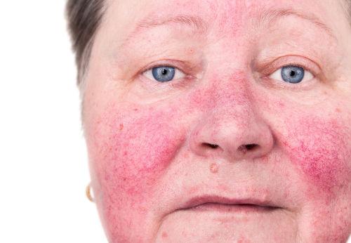 A rosácea causa vermelhidão na pele na região central da face.